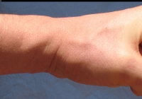 male fist photo left